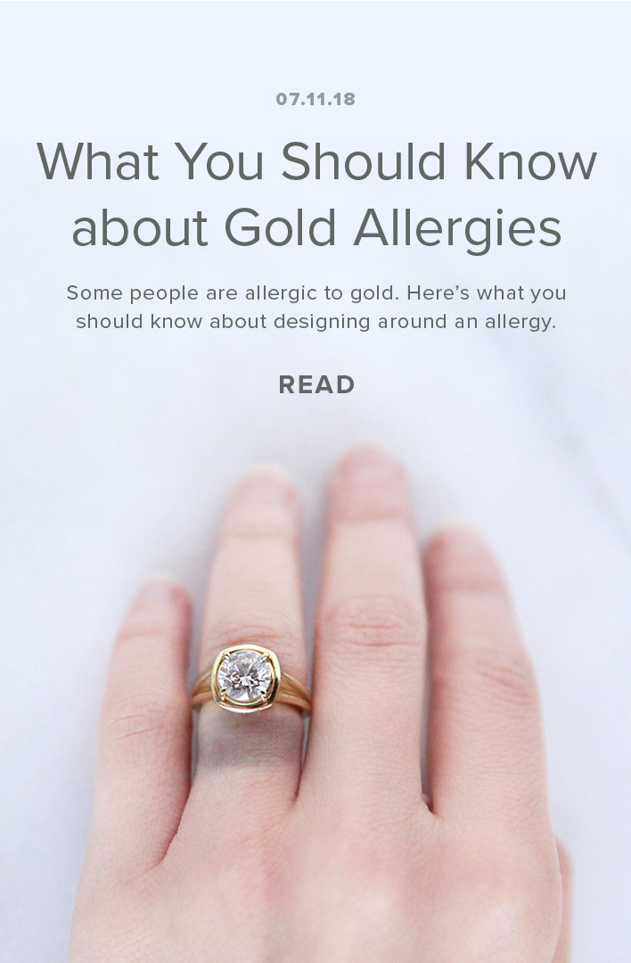 What You Should Know about Gold Allergies